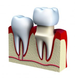 Benefit from dental crowns in Salinas.