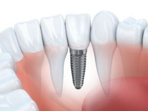 A dental implant on the front tooth
